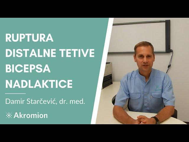 Ruptura distalne tetive bicepsa nadlaktice - Damir Starčević, dr.med. -Specijalna bolnica Akromion