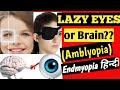 Lazy eye   Amblyopia   Patching   Endmyopia Hindi   कैसे ठीक करे  How to treat lazy eye in kids #8