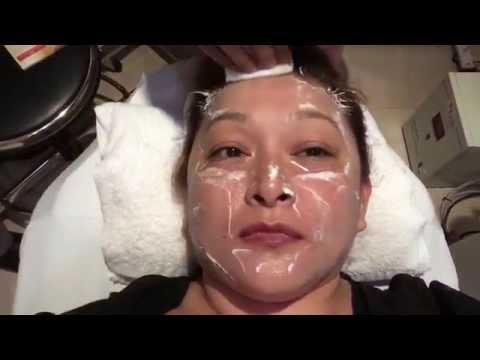 2nd Derma Lift PRP aka Vampire facial at Shinagawa Clinic