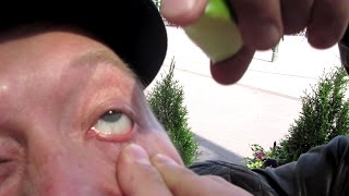 Lime In Your Eye Challenge! - Dudesons Summer of Challenges