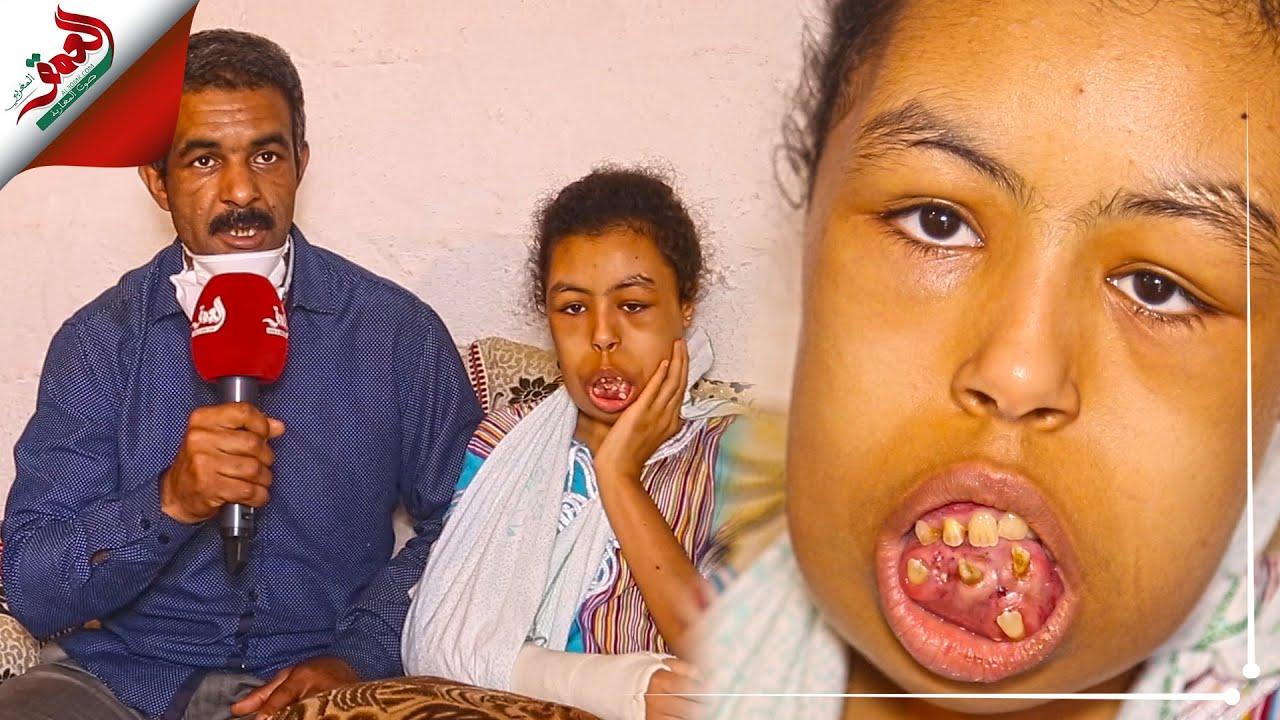 أسنانها تنبت في غير مكانها والأطباء المغاربة عجزوا عن تشخيص حالتها.. وسيمة طفلة من سلا تعيش جحيما