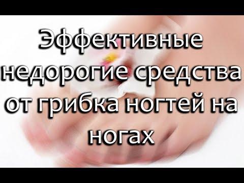 Недорогие противогрибковые препараты для ногтей