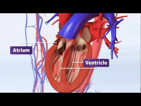 Atrial Fibrillation Animation Explained: AFib & Risk of Stroke