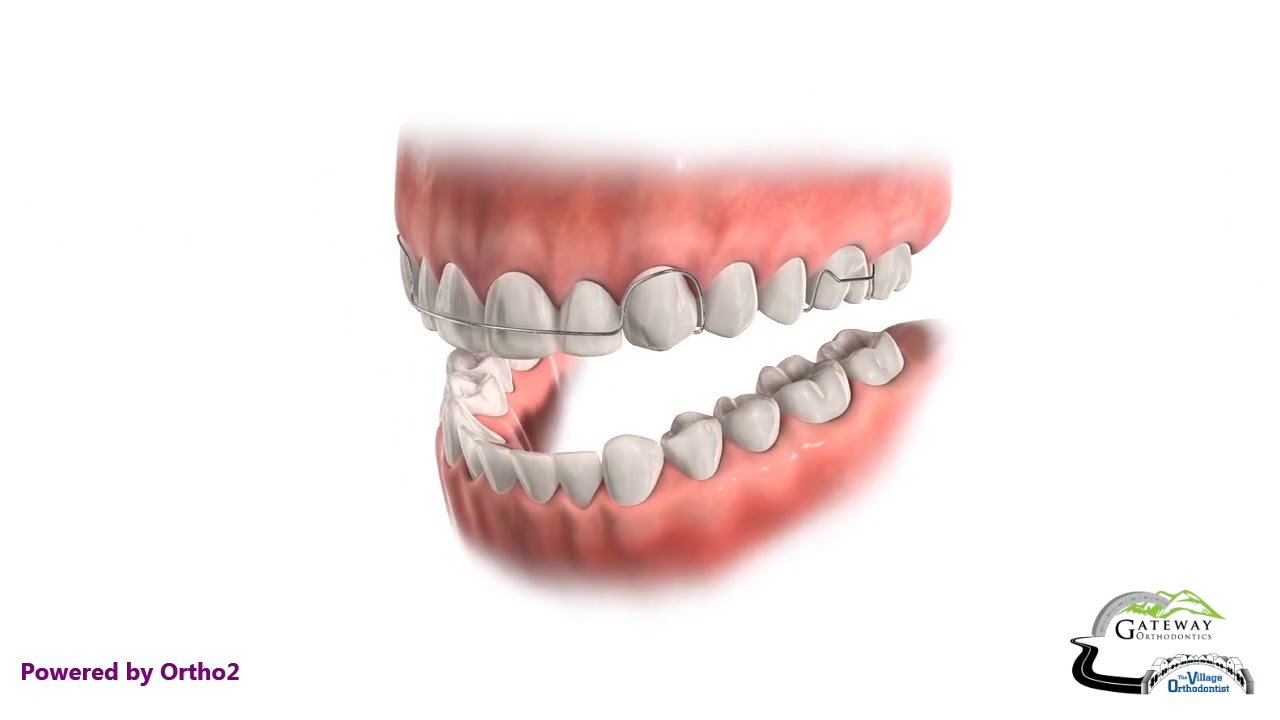 Retainers Q & A - Urbana Frederick, MD & Thurmont, MD: The
