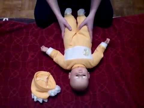 Неврология. ПГПЦНС. Короткая шея у ребенка (Дефанс)