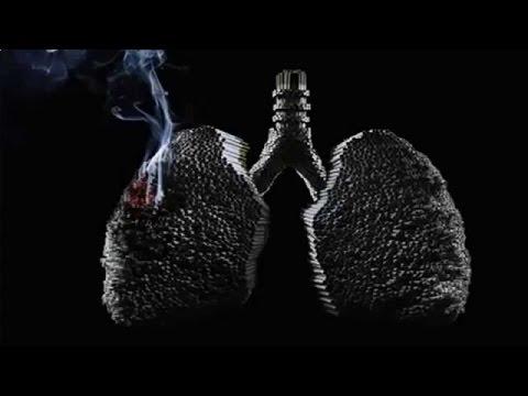 Что такое хроническая обструктивная болезнь легких (ХОБЛ