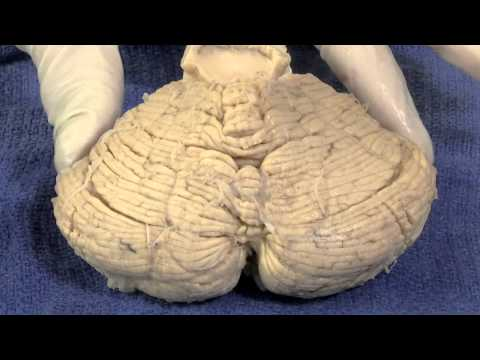 Vestibular System: Neuroanatomy Video Lab - Brain Dissections