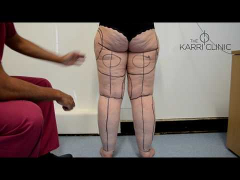 LIVE SURGERY: Liposuction for Type IV Stage II Lipoedema by Mr Vasu Karri | Before & After Images