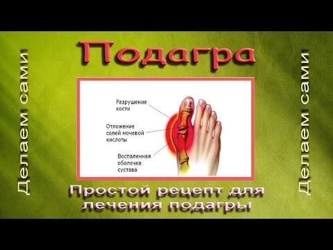 Полипы, народные средства, лечение чистотелом