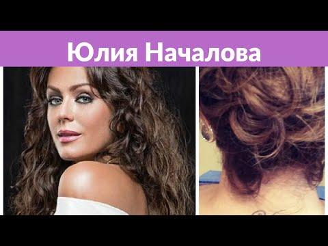 «Не нужно ничего с собой делать»: рассказавшая о подагре Началова заговорила о пластике