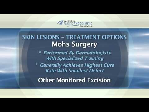 Skin Lesions St. Louis - Dr. Holds