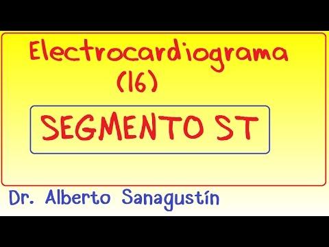 Electrocardiograma (16): Segmento ST