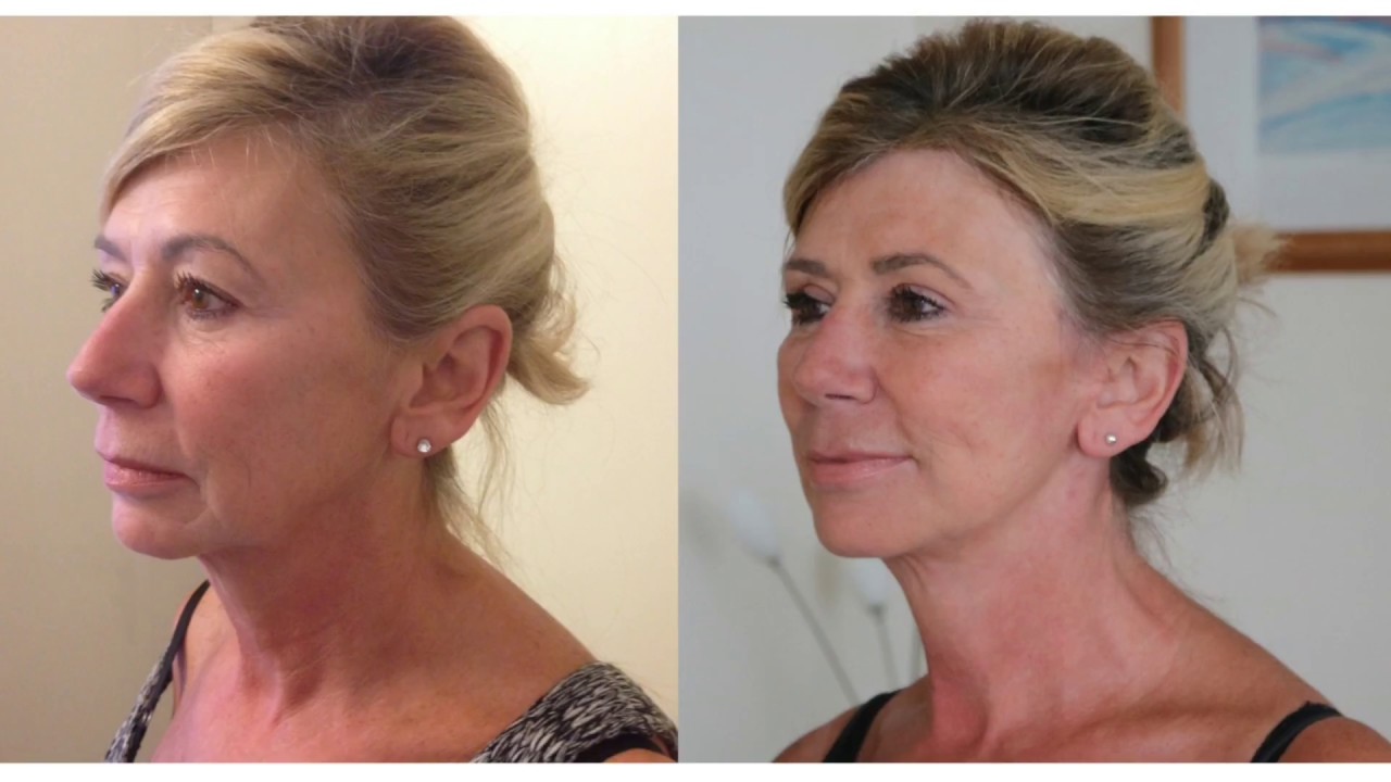 High SMAS facelift Before and After| Patient Review | Mr ...
