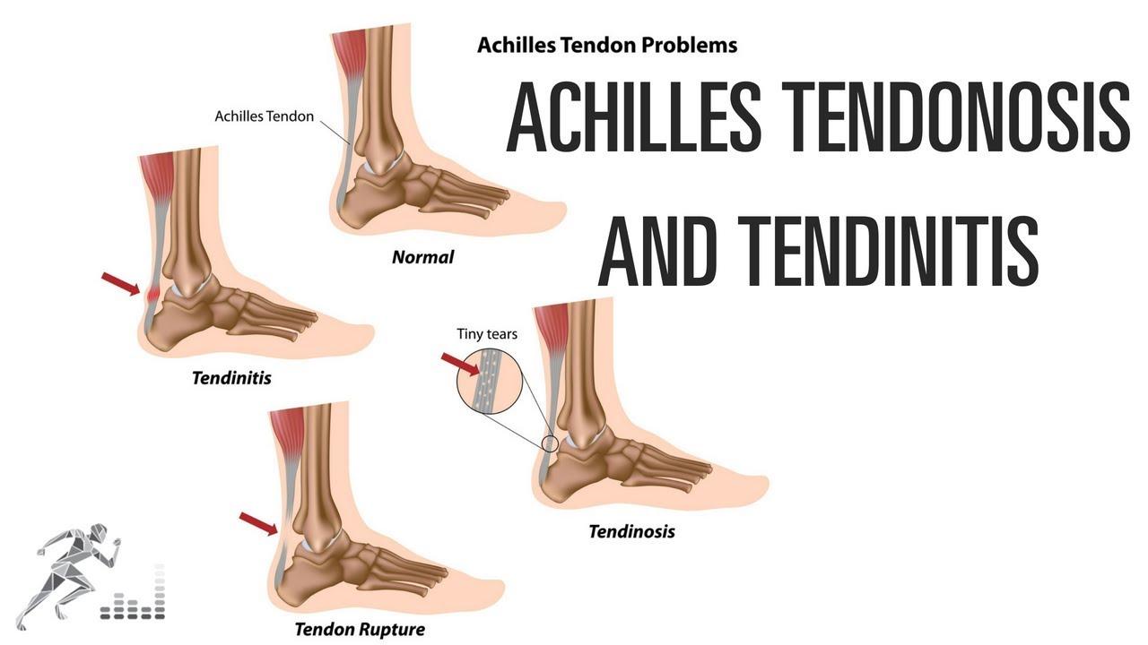 Achilles tendinosis and tendinitis