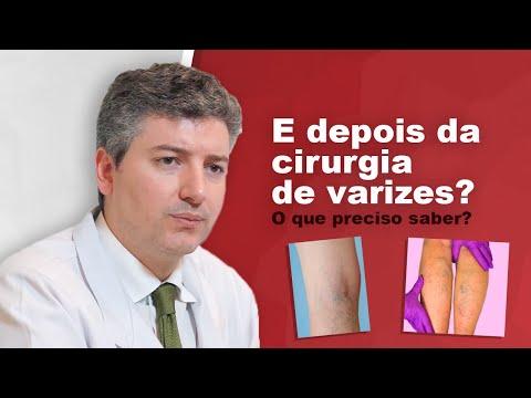 Como é o pós operatório da cirurgia de Varizes convencional/tradicional