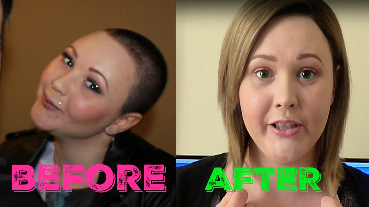 shaved hair growth
