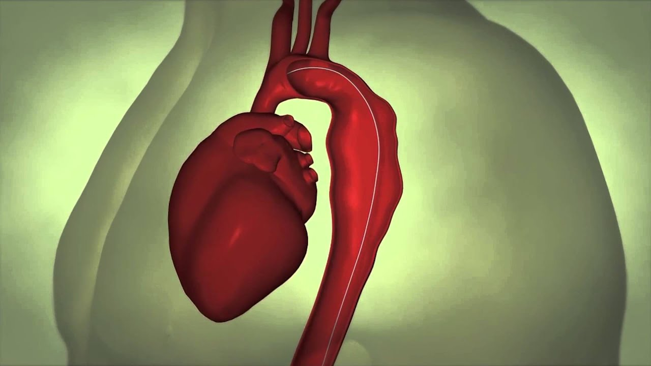 Thoracic Aortic Aneurysm - YouTube
