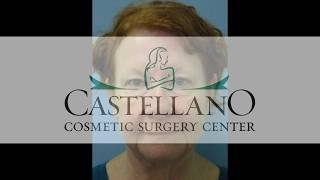 Dr.Joseph Castellano | Before & After Video: Facelift Case #55
