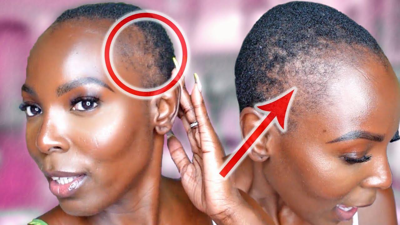 Why I Have No Edges, Dermatologist Explains!