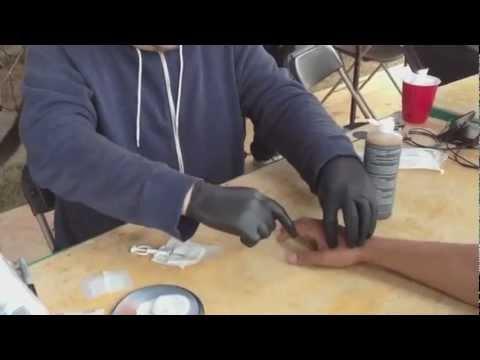 Man gets RFID Microchip In America