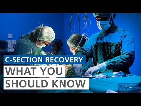 What should I know about recovering from a C-section?