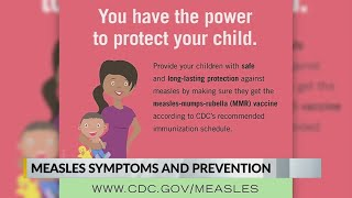 measles symptoms and prevention
