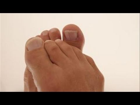 How To Manage A Stubbed Toe