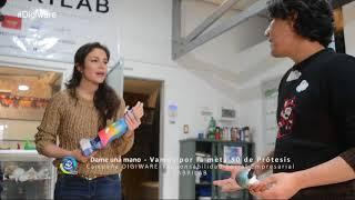 Dame una mano | Cómo una prótesis 3D garantiza la calidad de vida de los niños. Flora Martínez