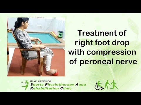 Treatment of right foot drop with compression of peroneal nerve
