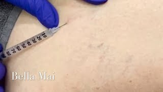Sclerotherapy Vein Removal Injections (Legs)