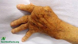 Draslík a autoimunitní onemocnění