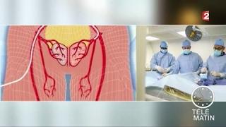 Santé - Prostate : un nouveau traitement