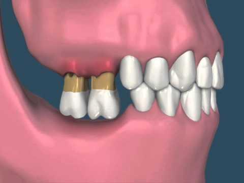 Resultado de imagem para perda óssea falta de dente