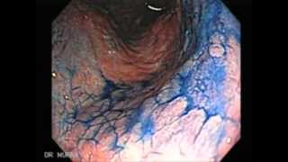 Endoscopy of Chronic Gastritis