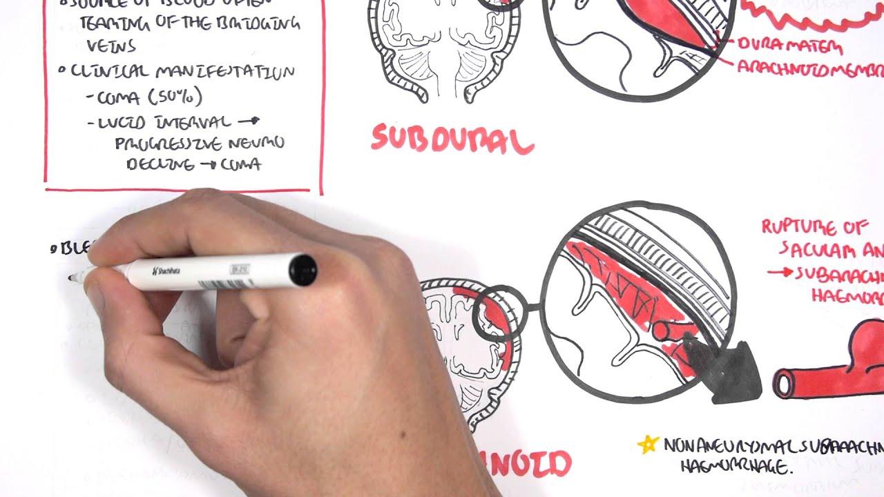 Intracranial Haemorrhage Types - YouTube
