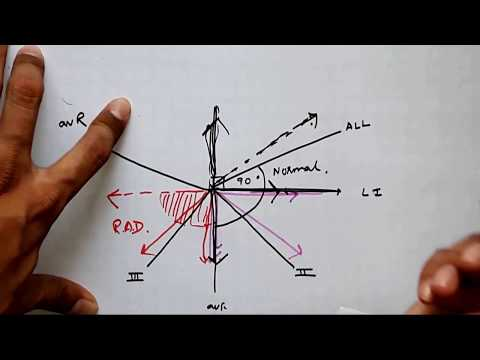 How to determine calculate EKG,ECG axis,right and left axis deviation,quadrant method,medical videos