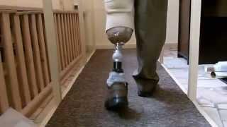 Repeat youtube video Ortotyka, proteza nogi, stopa z włókien węglowych OSSUR Rotate, silikon/liner, proteza podudzia.