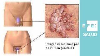 tratamiento papilomatosis genital