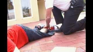 alex when he broke his leg