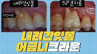 어금니 내려간잇몸/치경부마모증이 있을때 크라운치료