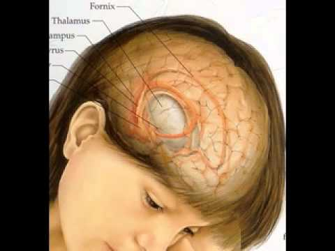 Brain Cancer Pictures Youtube