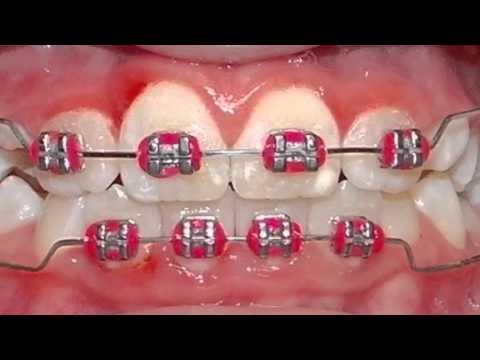 Ortodontia Bioprogressiva de Ricketts