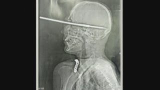 X-ray pics: Man shoots himself in the face with a harpoon in Brazil...and survives!