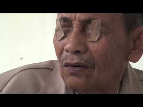 Nias Eye Surgery Camp - 2012