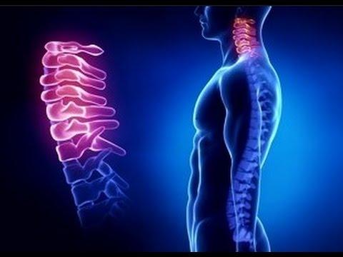 что за болезнь остеохондроз