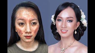 Cô Dâu Da Qúa Nhiều Mụn Trang Điểm Thế Nào Cho Đẹp / Hùng Việt Makeup
