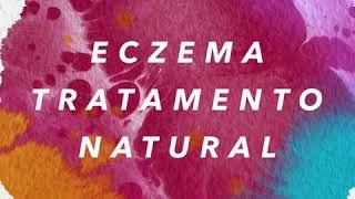 Celulite vs eczema venoso