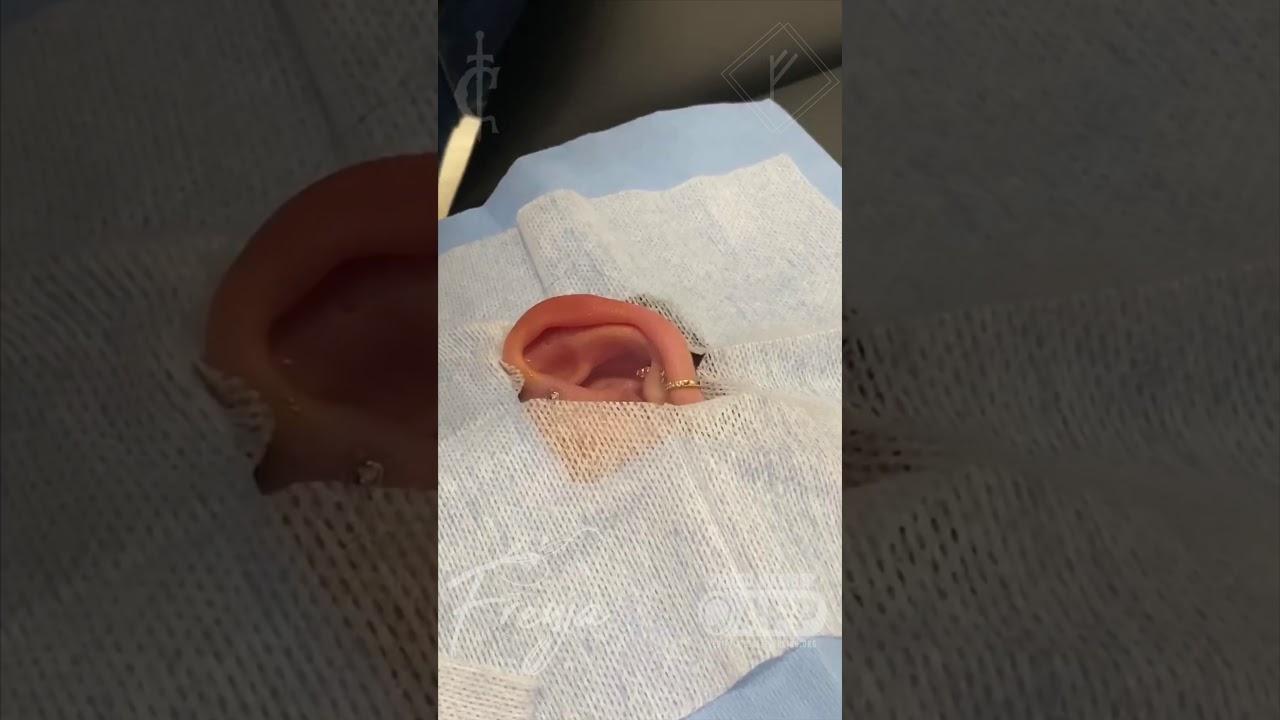 Helix Piercing Youtube