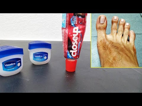 VASELINE & CLOSEUP GEL TOOTHPASTE LIFE HACKS FEET WHITENING TECHNIQUES- Skincare Beauty Tips Instant