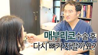 [부산서면성형외과] 매부리 코 수술후,  다시 뼈가 자…